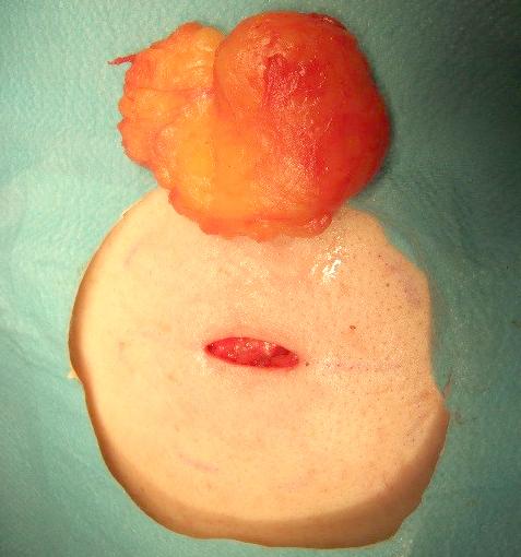 腫 何 科 脂肪 何これ?みぞおちにしこり…脂肪腫?病院は何科?悪性腫瘍のリスクは?